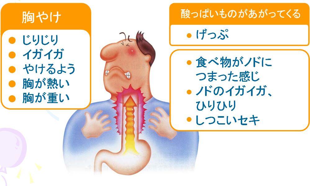 性 炎 逆流 薬 食道